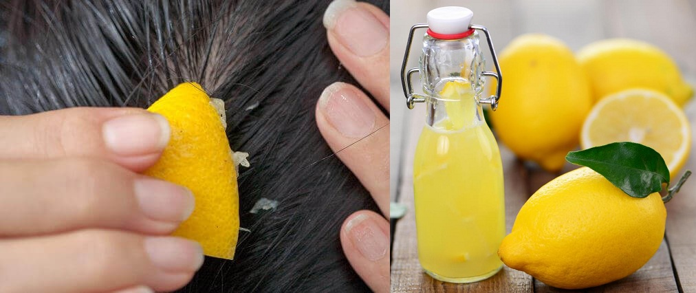 Apply Lemon Juice On Scalp