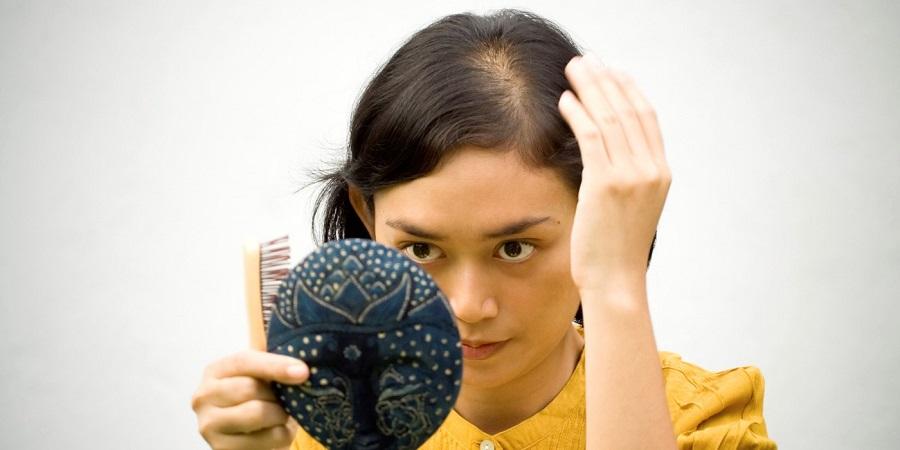 Anemia Hair Fall