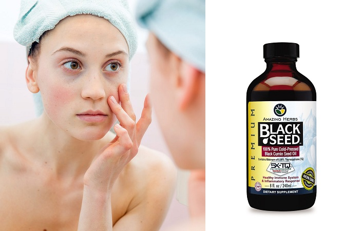 Black Seed Oil For Dark Circles