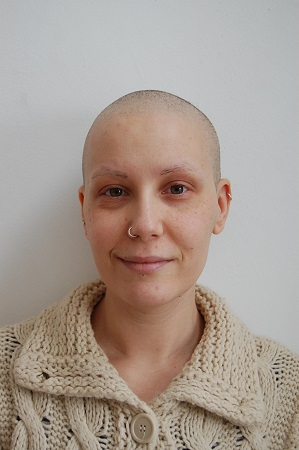 Chemotherapy and Radiotherapy