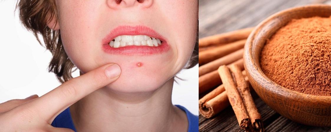 Cinnamon For Acne