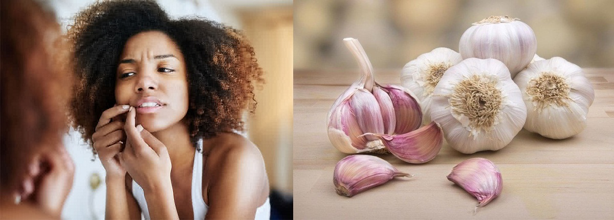 Garlic For Treating Pimples