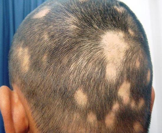 PCOS Hair Fall